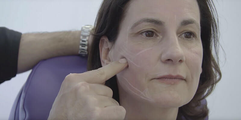 Video: Facial Design Facelifting ohne OP