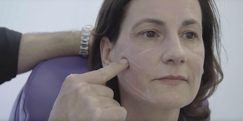 Video: Facial Design Facelifting ohne OP