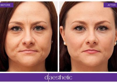 D-Aesthetic - Augenringe Tränenfurche - Vorher Nachher Bild