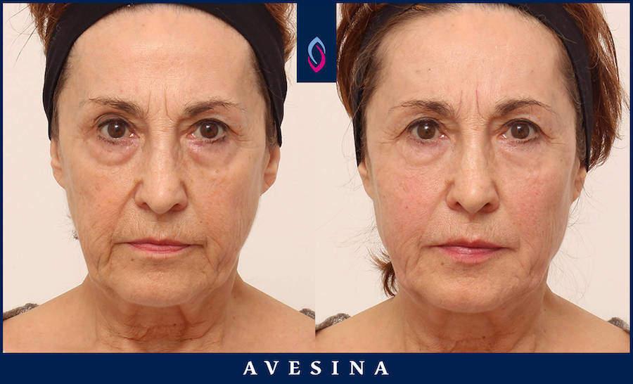 Facial Design Vorher Nacher Bild
