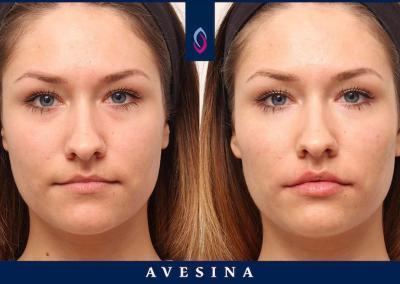 D-Ästhetic Lippenbehandlung vorher nachher
