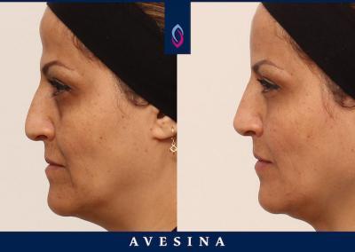 D-Aesthetic - Schläfenaufbau / Stirnaufbau - Vorher Nachher Bild