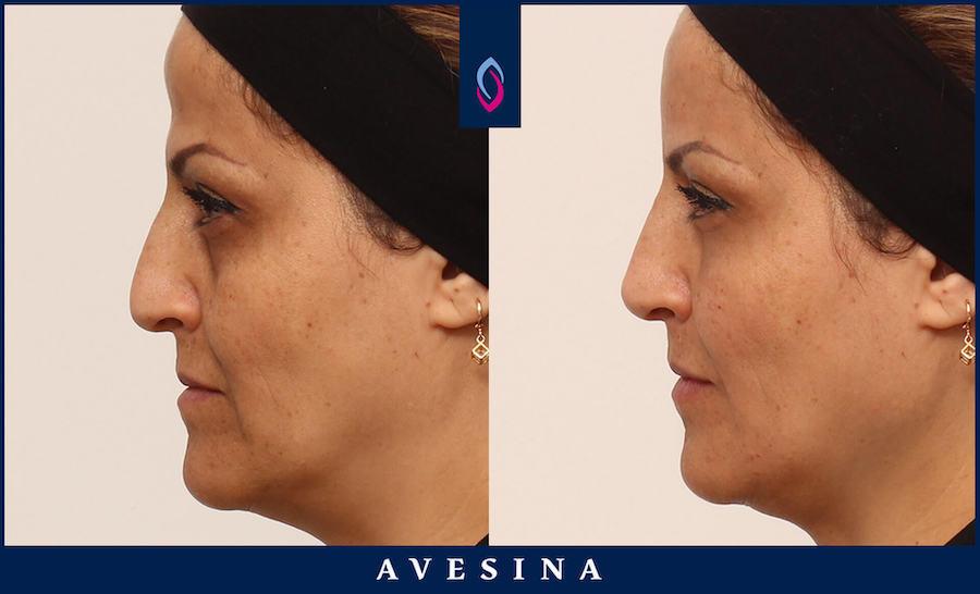 d-asthetic - Schläfenaufbau / Stirnaufbau - Vorher Nachher Bild