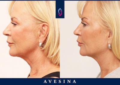 D-Ästhetic vorher nachher Halsstraffung ohne OP