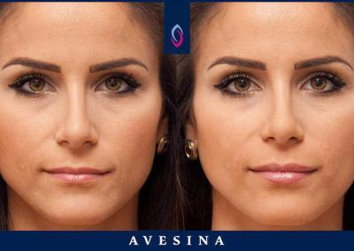 D-Ästhetic Vorher Nachher Lippenbehandlung