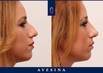 D-Aesthetic Nasenkorrektur Vorher Nachher
