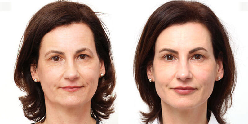FACIAL DESIGN vs. Facelifting