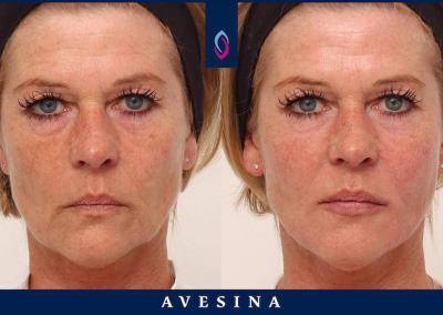 Facial Design vorher nachher D-Ästhetic