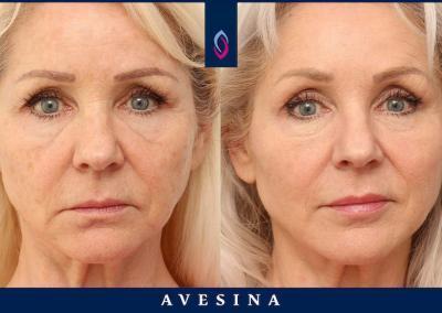 Facial Design vorher nachher Dr. Djalaei Düsseldorf