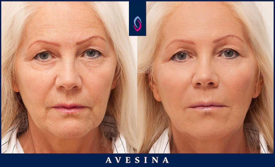 Facial Design vorher nachher Dr. Sina Djalaei Düsseldorf