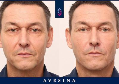 facial design vorher nachher dr. sina djalaei