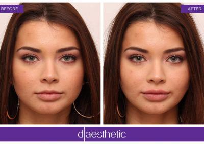 Lippenbehandlung Vorher Nachher D-Ästhetic