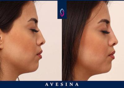 D-Aesthetic - Nasenkorrektur - Vorher Nachher Bild