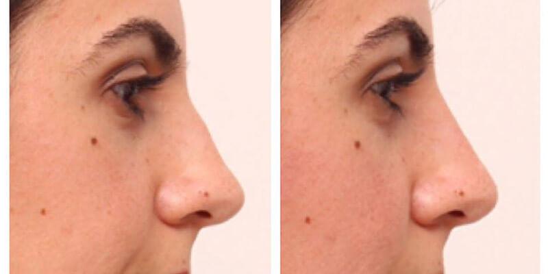Nasenkorrektur ohne OP! – Erfahrungsbericht
