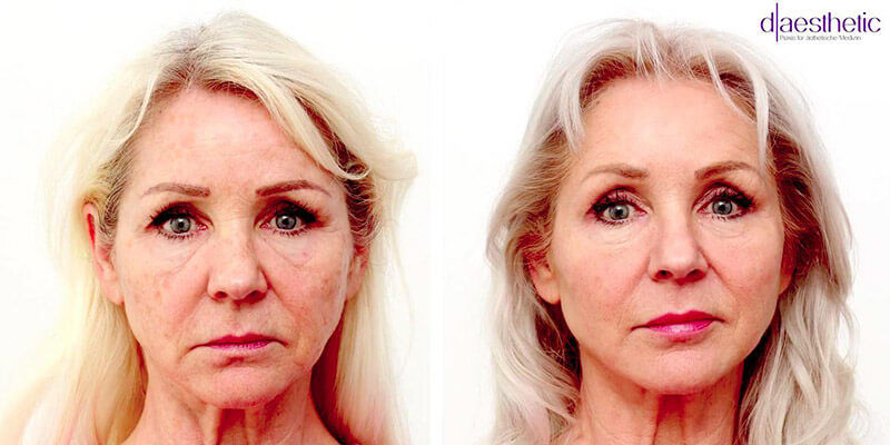 Was ist Facial Design?