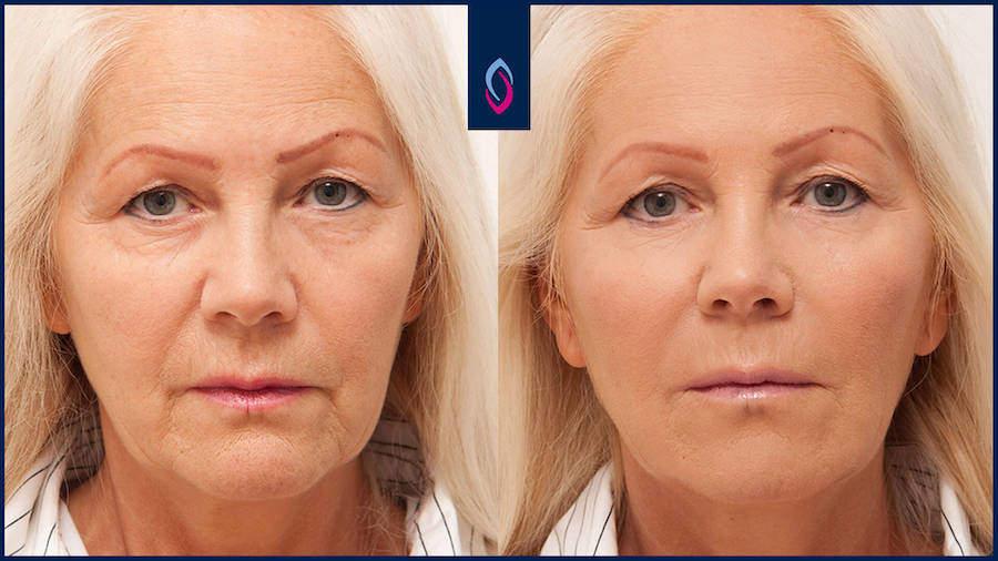 Vorher-Nachher Bild einer blonden älteren Frau nach einer Hyaluronbehandlung