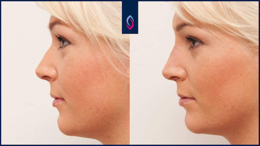 Vorher-Nachher Bild einer blonden jüngeren Frau nach de Nasenkorrektur ohne OP