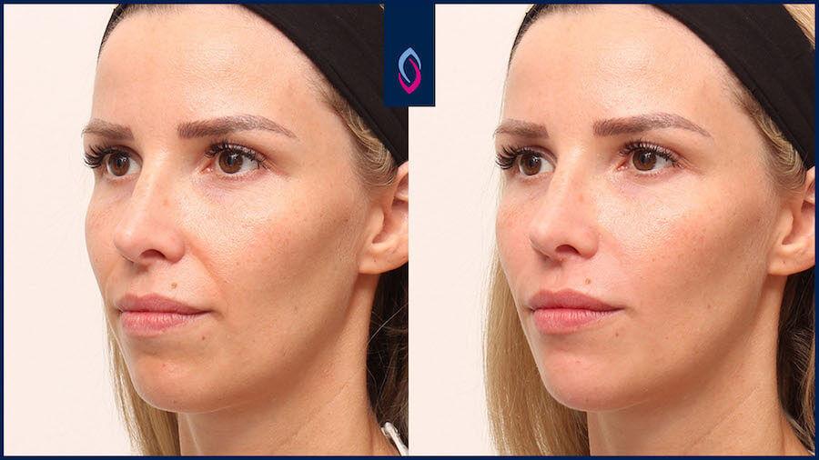Vorher-Nachher Bild einer blonden jüngeren Frau nach der Behandlung der Nasolabialfalte