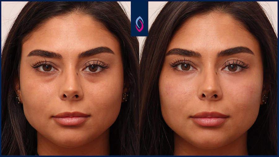 Vorher-Nachher Bild einer dunkelhaarigen jüngeren Frau nach der Behandlung der Augenringe