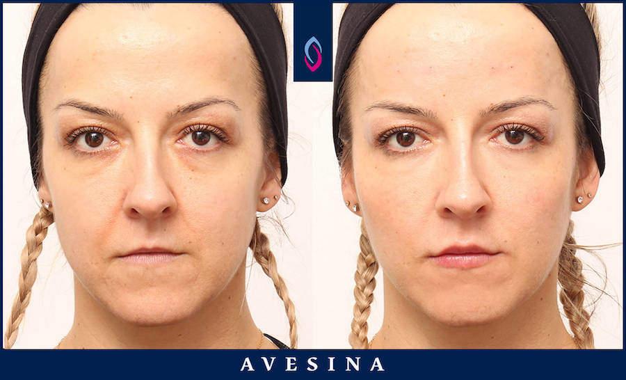 Faltenbehandlung mit Botox in Köln
