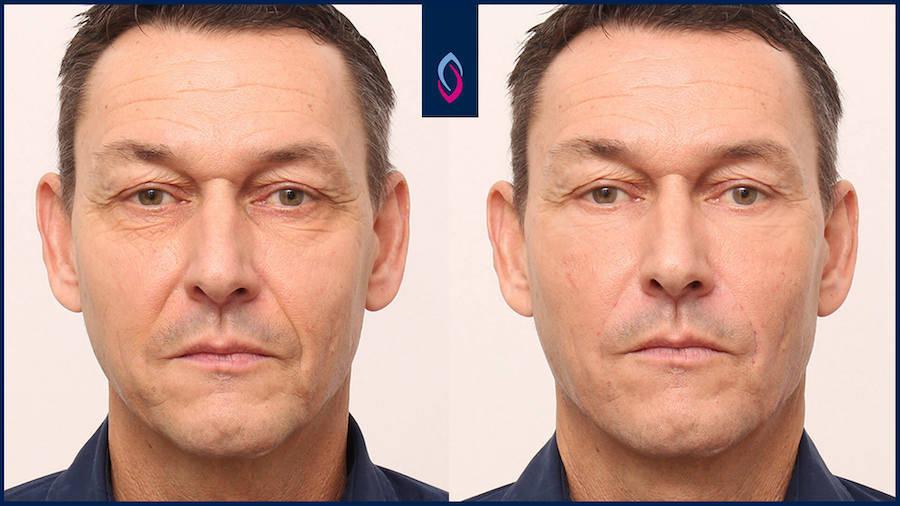 Vorher-Nachher Bild eines älteren Mannes nach der Botoxbehandlung
