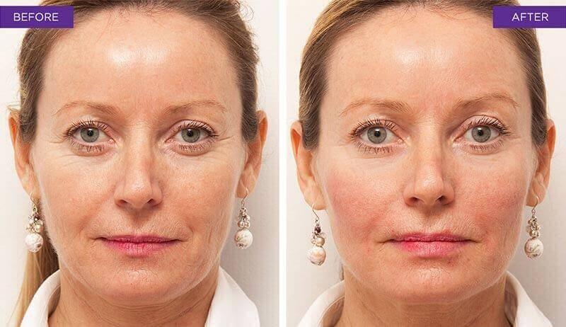 Botox Kosten
