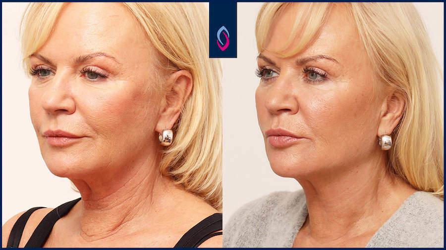 Vorher-Nachher Bild einer blonden älteren Frau nach der Halsstraffung ohne OP