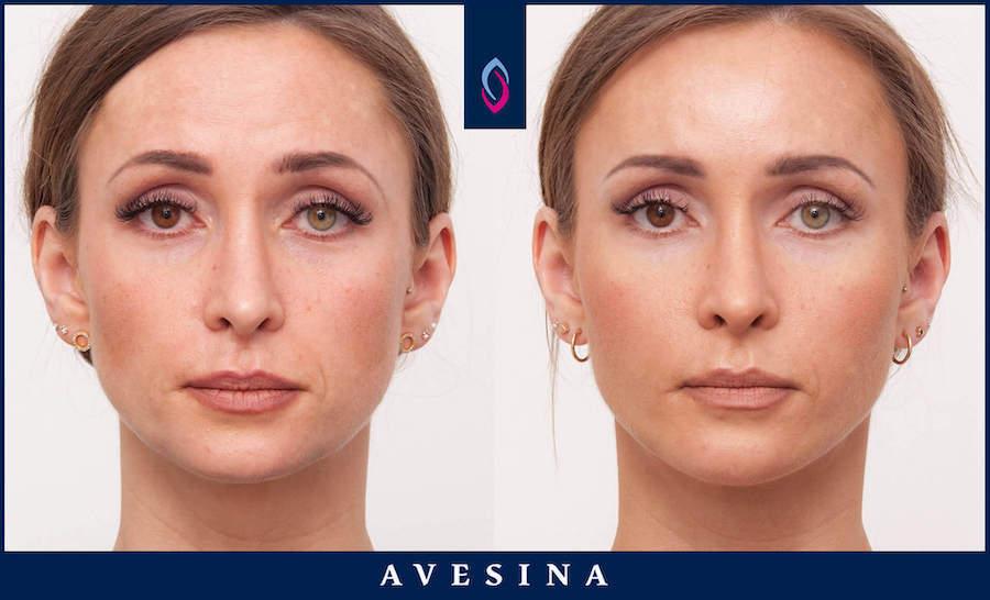 Facial Design - d-aesthetic Dr. Djalaei