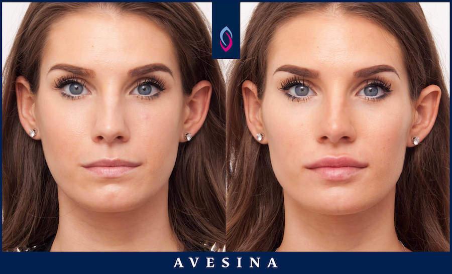 Facial Design Dr. Djalaei - d-aesthetic