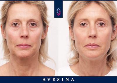 Facial Design Dr. Djalaei Düsseldorf