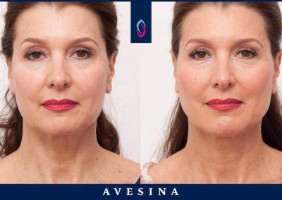 Facial Design Dr. Djalaei - düsseldorf - d-aesthetic