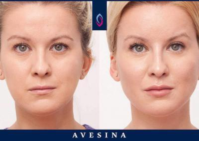 Facial Design Ergebnisse Düsseldorf Dr. Djalaei - d-aesthetic