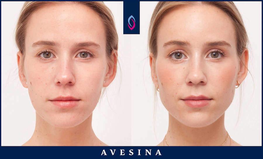 Facial Design Ergebnisse - d-aesthetic
