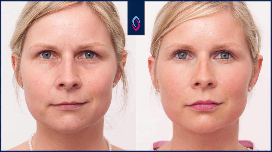 Vorher-Nachher Bild einer blonden Frau mittleren Alters nach dem Unterspritzen der Augenringe