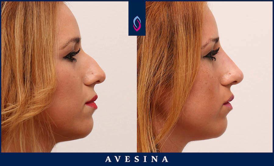 Nasenkorrektur ohne OP Vorher Nacher Bild