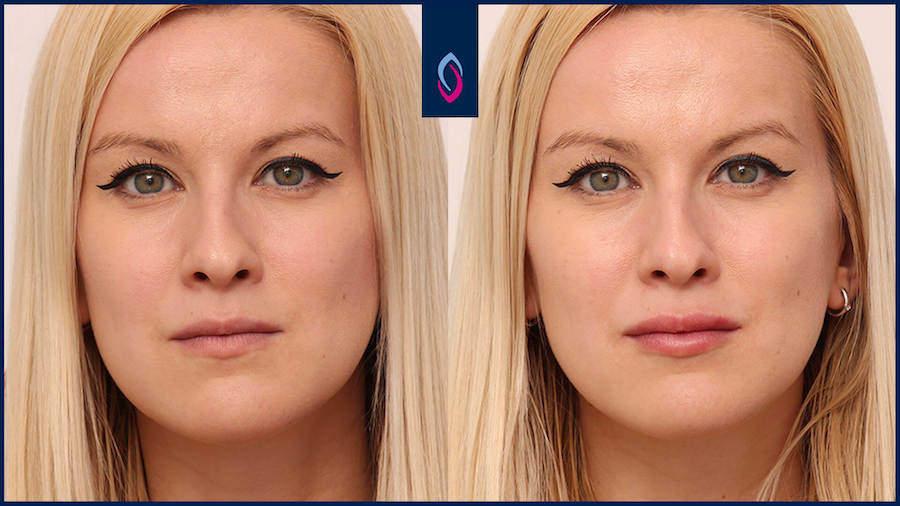 Vorher-Nachher Bild einer blonden Frau mittleren Alters nach der Unterspritzung der Lippen