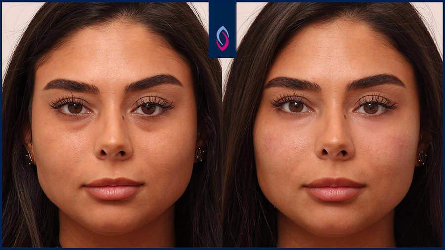 Vorher-Nachher Bild einer dunkelhaarigen jüngeren Frau nach der Behandlung der Tränenfuche