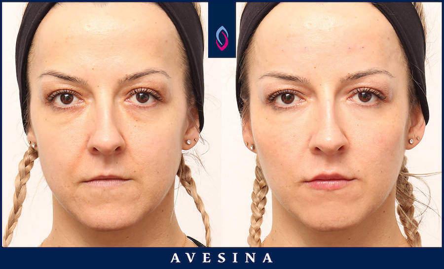 Botox Vorher Nachher