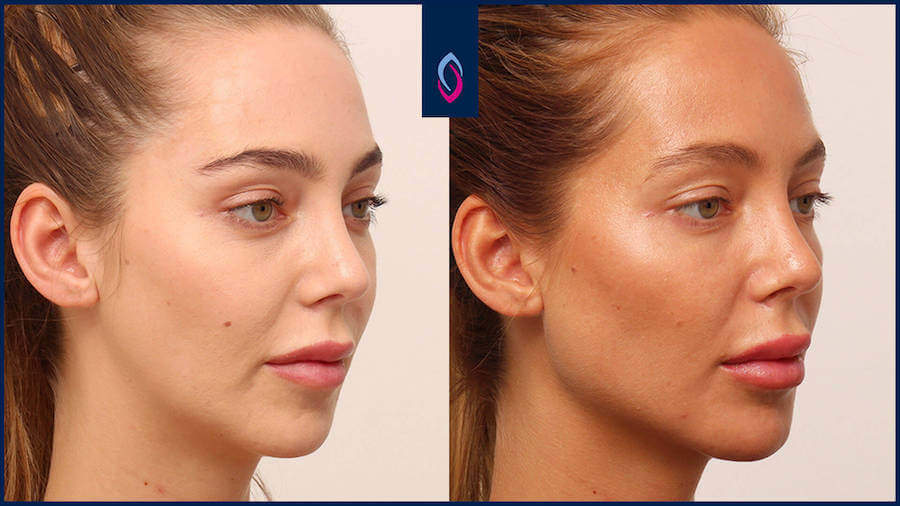 Vorher-Nachher Bild einer brünetten jüngeren Frau nach der Jawline Behandlung