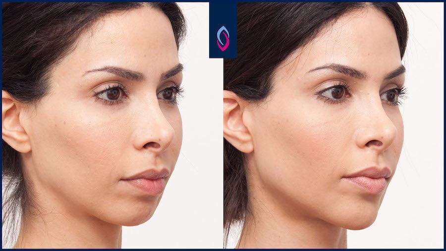 Vorher-Nachher Bild einer dunkelhaarigen jüngeren Frau nach der Jawline Behandlung